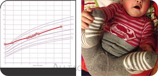 Vorsorge U5 - Perzentile vs. Baby