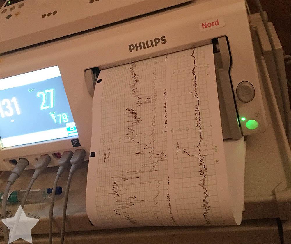 Geburt - Geburtsbericht - 3. Kind - VBA2C - CTG - schlechte Herztöne nach Einleitung